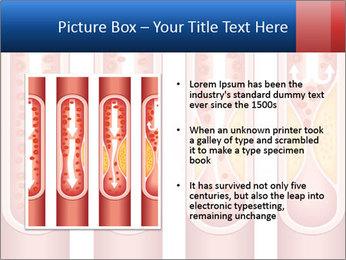 Vienna human atherosclerosis PowerPoint Template - Slide 13