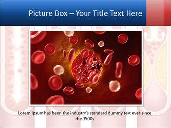 Vienna human atherosclerosis PowerPoint Template - Slide 15