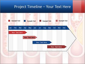 Vienna human atherosclerosis PowerPoint Template - Slide 25