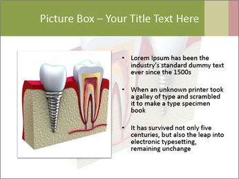 Anatomy of healthy teeth PowerPoint Template - Slide 13