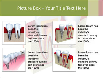 Anatomy of healthy teeth PowerPoint Template - Slide 14