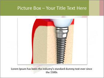 Anatomy of healthy teeth PowerPoint Template - Slide 15