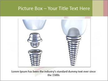 Anatomy of healthy teeth PowerPoint Template - Slide 16
