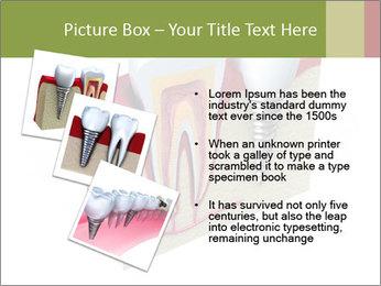 Anatomy of healthy teeth PowerPoint Template - Slide 17