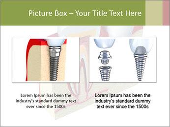 Anatomy of healthy teeth PowerPoint Template - Slide 18