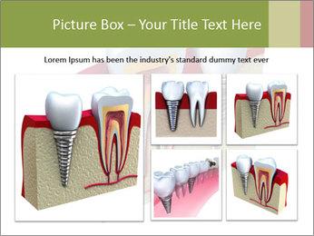 Anatomy of healthy teeth PowerPoint Template - Slide 19
