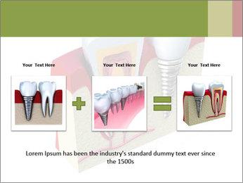 Anatomy of healthy teeth PowerPoint Template - Slide 22