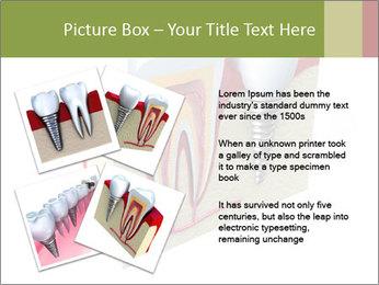 Anatomy of healthy teeth PowerPoint Template - Slide 23