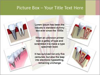 Anatomy of healthy teeth PowerPoint Template - Slide 24