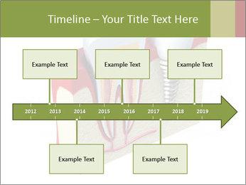 Anatomy of healthy teeth PowerPoint Template - Slide 28