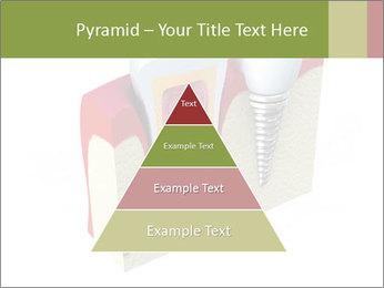Anatomy of healthy teeth PowerPoint Template - Slide 30
