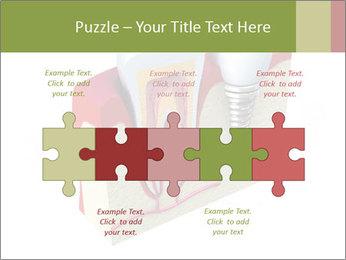 Anatomy of healthy teeth PowerPoint Template - Slide 41