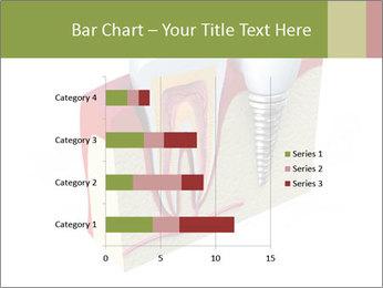 Anatomy of healthy teeth PowerPoint Template - Slide 52