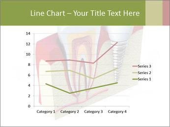 Anatomy of healthy teeth PowerPoint Template - Slide 54