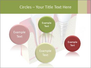 Anatomy of healthy teeth PowerPoint Template - Slide 77