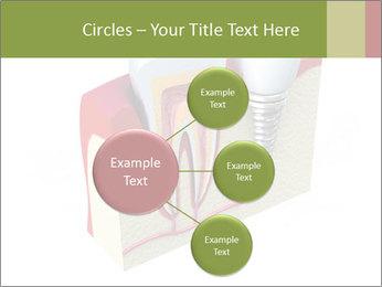 Anatomy of healthy teeth PowerPoint Template - Slide 79