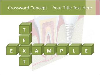 Anatomy of healthy teeth PowerPoint Template - Slide 82