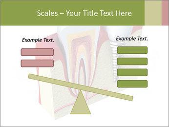 Anatomy of healthy teeth PowerPoint Template - Slide 89