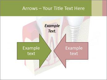 Anatomy of healthy teeth PowerPoint Template - Slide 90
