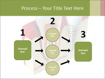 Anatomy of healthy teeth PowerPoint Template - Slide 92