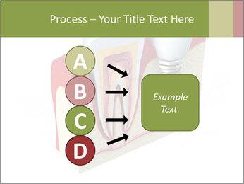 Anatomy of healthy teeth PowerPoint Template - Slide 94
