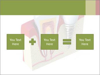 Anatomy of healthy teeth PowerPoint Template - Slide 95