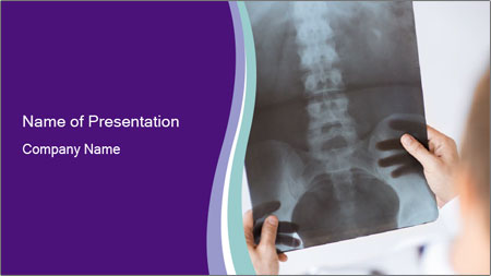 Doctor holding x-ray PowerPoint Template