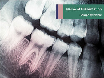 X-ray of teeth PowerPoint Templates - Slide 1