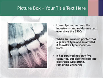 X-ray of teeth PowerPoint Templates - Slide 13