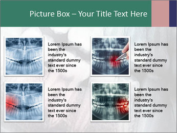 X-ray of teeth PowerPoint Templates - Slide 14