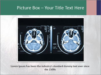 X-ray of teeth PowerPoint Template - Slide 15