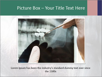 X-ray of teeth PowerPoint Templates - Slide 16