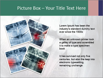 X-ray of teeth PowerPoint Templates - Slide 23
