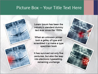 X-ray of teeth PowerPoint Templates - Slide 24