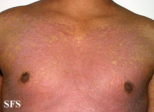 Pityriasis Rubra Pilaris Natural Treatment