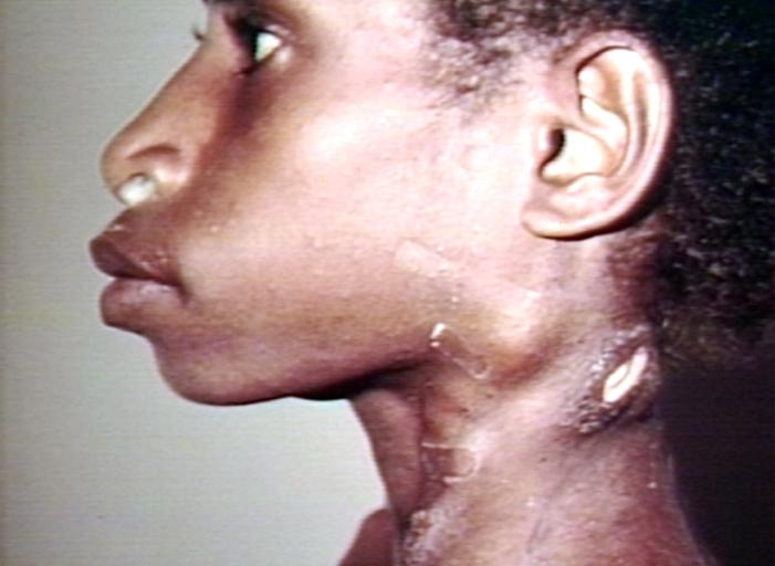 Cervical Cancer Symptoms Over 50
