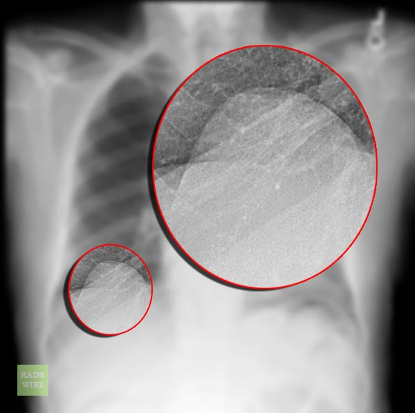 Eventration of diaphragm in adults
