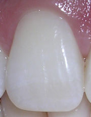 06-10-06rightcentralincisor.jpg