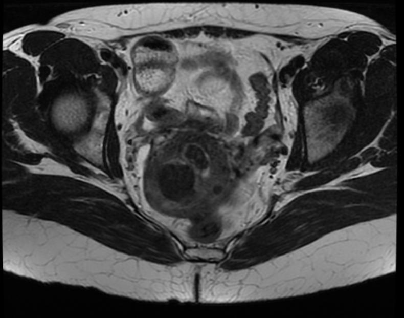 Fibroid prolapsed into endometrial canal 002.jpg