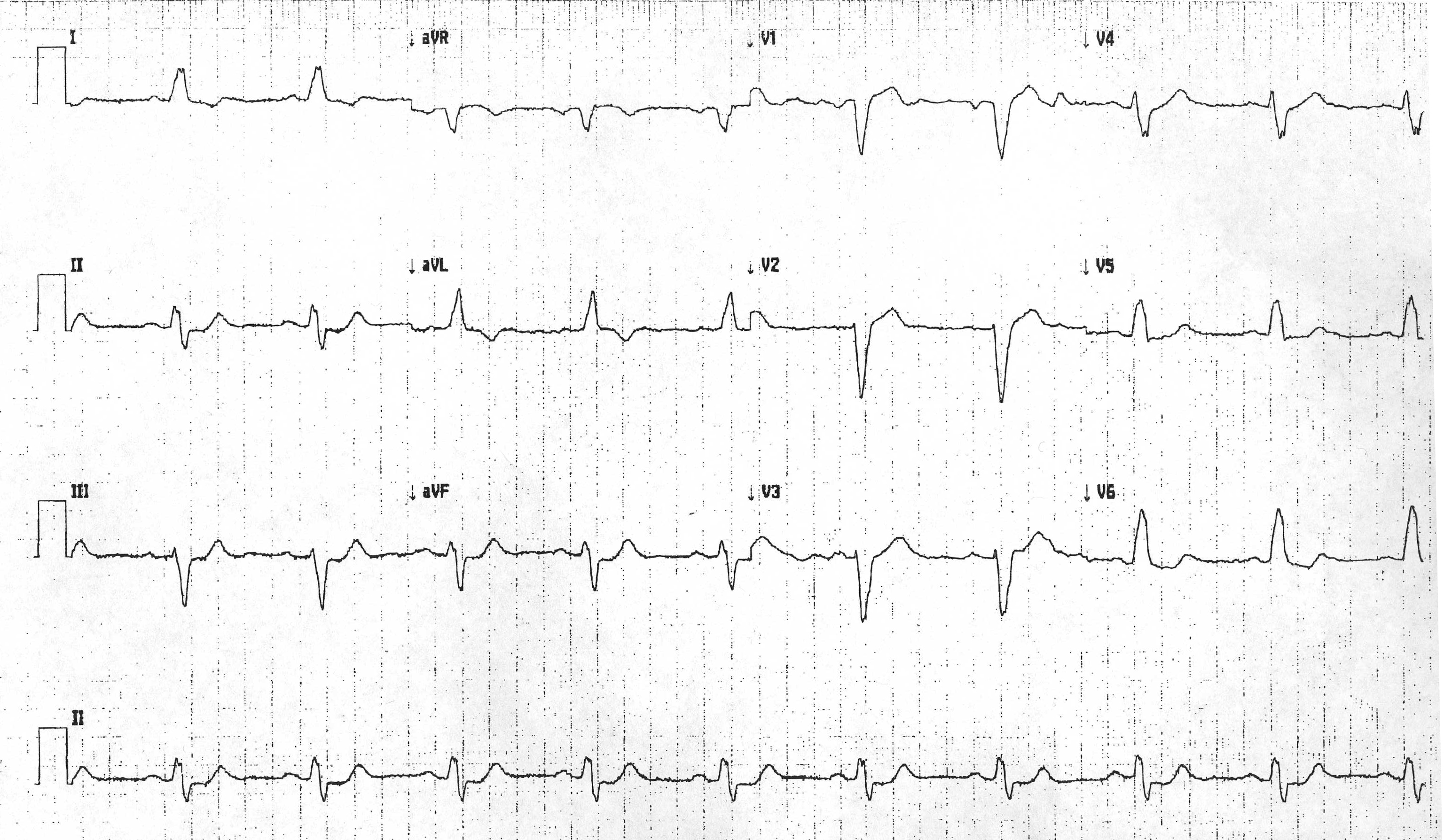 LBBB with pseudonormalization of T waves.jpg