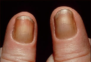 Yellow nail syndrome.jpg