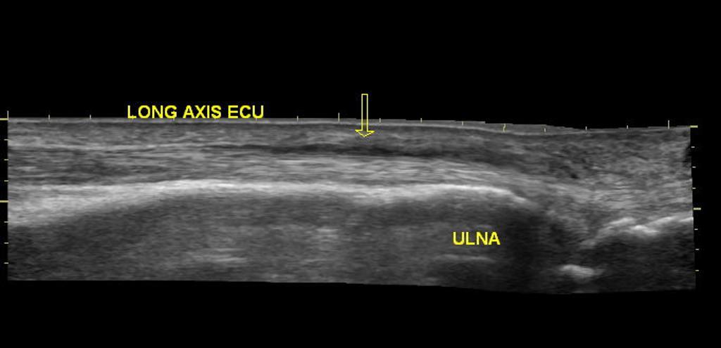 Systemic Lupus Erythematosus Ultrasound Or