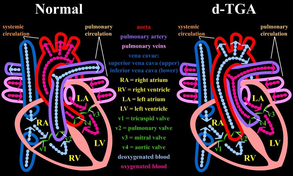 Normal heart anatomy compared to d-TGA
