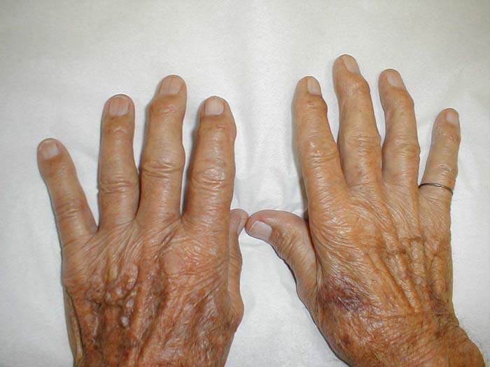 Ganglion Cyst Natural Treatment Forum