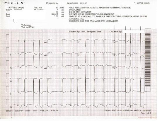 Atrial fibrillation EKG examples - wikidoc