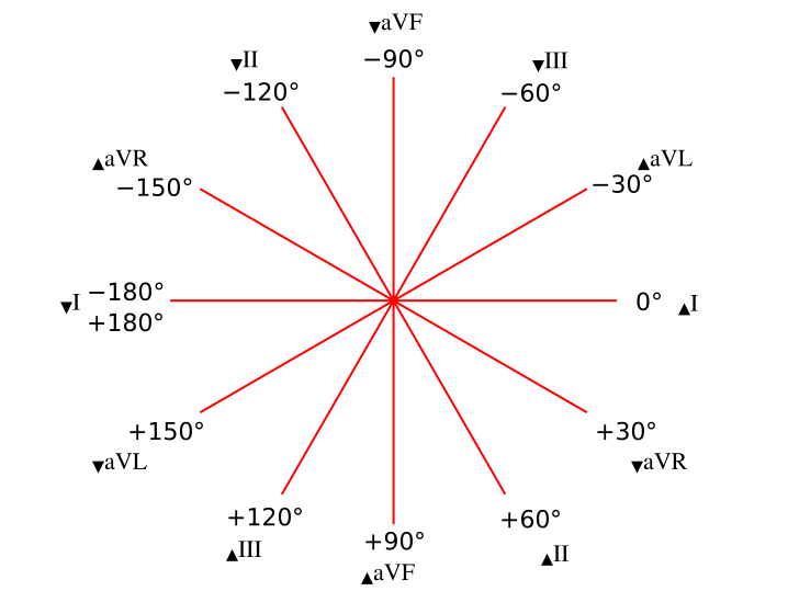 Photopheresis - Wikipedia