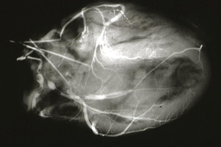 Angiogram Myoca...