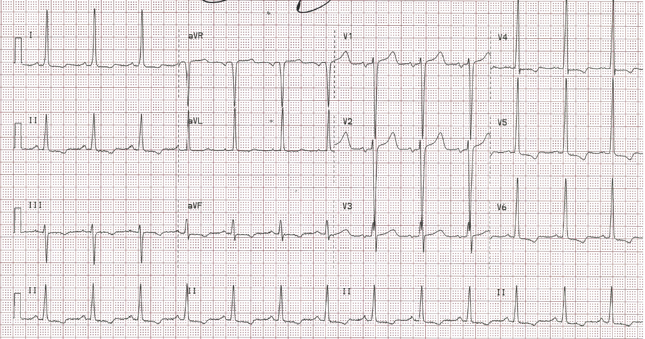 Q wave absent in anterior distribution.PNG