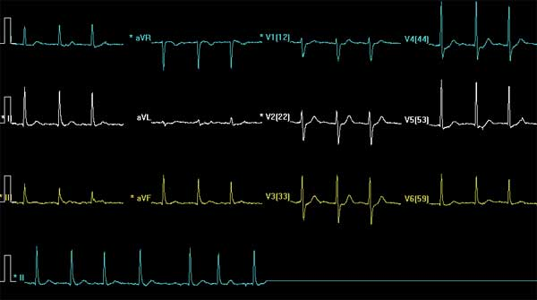 Unremarkable 12 lead EKG