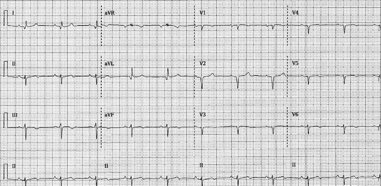 st elevation myocardial infarction ekg examples